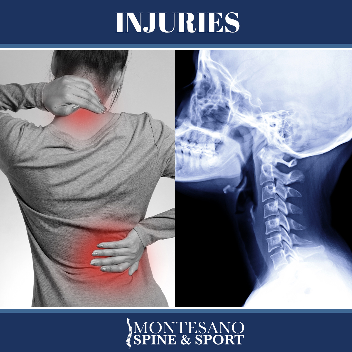 Read more about the article The back and neck are two of the most important parts of our body.